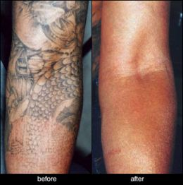 Tattoo Removal on Best Tattoo Shops   Tattoo Removal And Cover Up